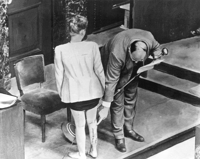 Бывшая заключенная концлагеря демонстрирует шрамы, оставшиеся после медицинских экспериментов, вовремя Нюрнбергского процесса. 22декабря 1946 года
