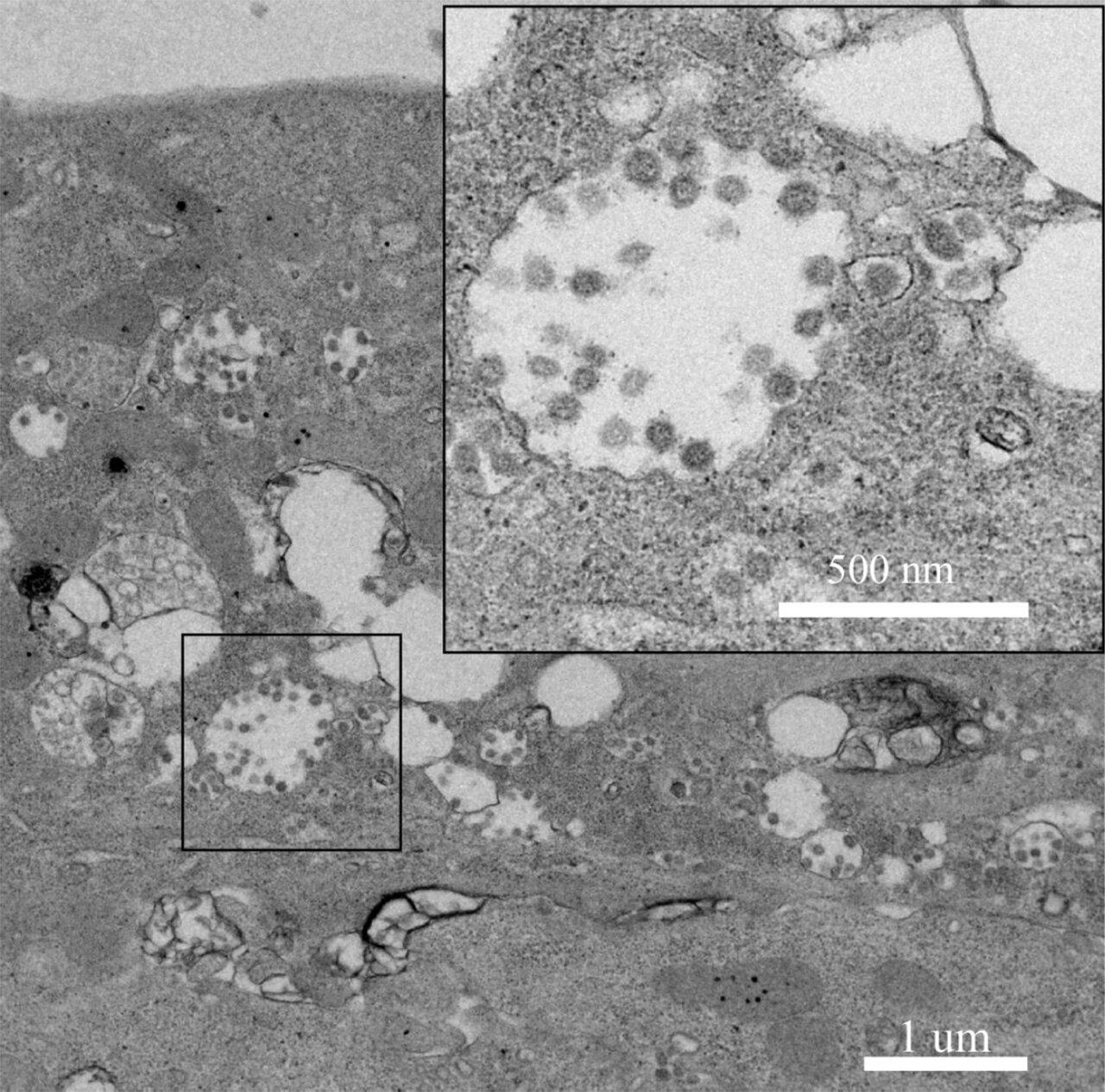 коронавирусы возбудитель атипичной пневмонии
