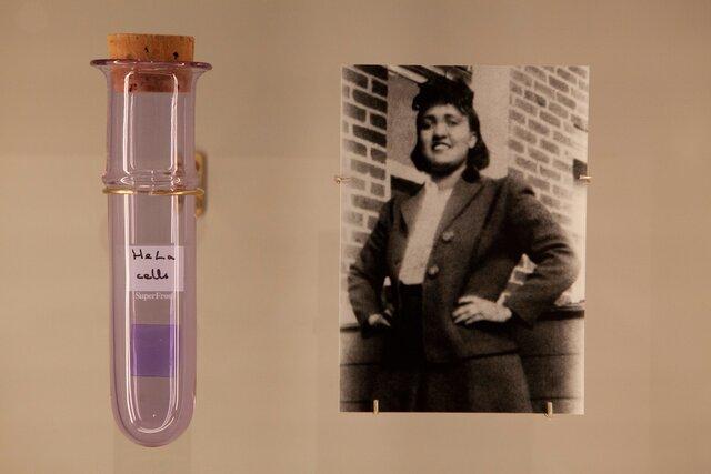 Потомки Генриетты Лакс  женщины, чьи вечные клетки много лет помогают ученым  потребовали компенсации. Они недовольны, что тело бабушки использовали